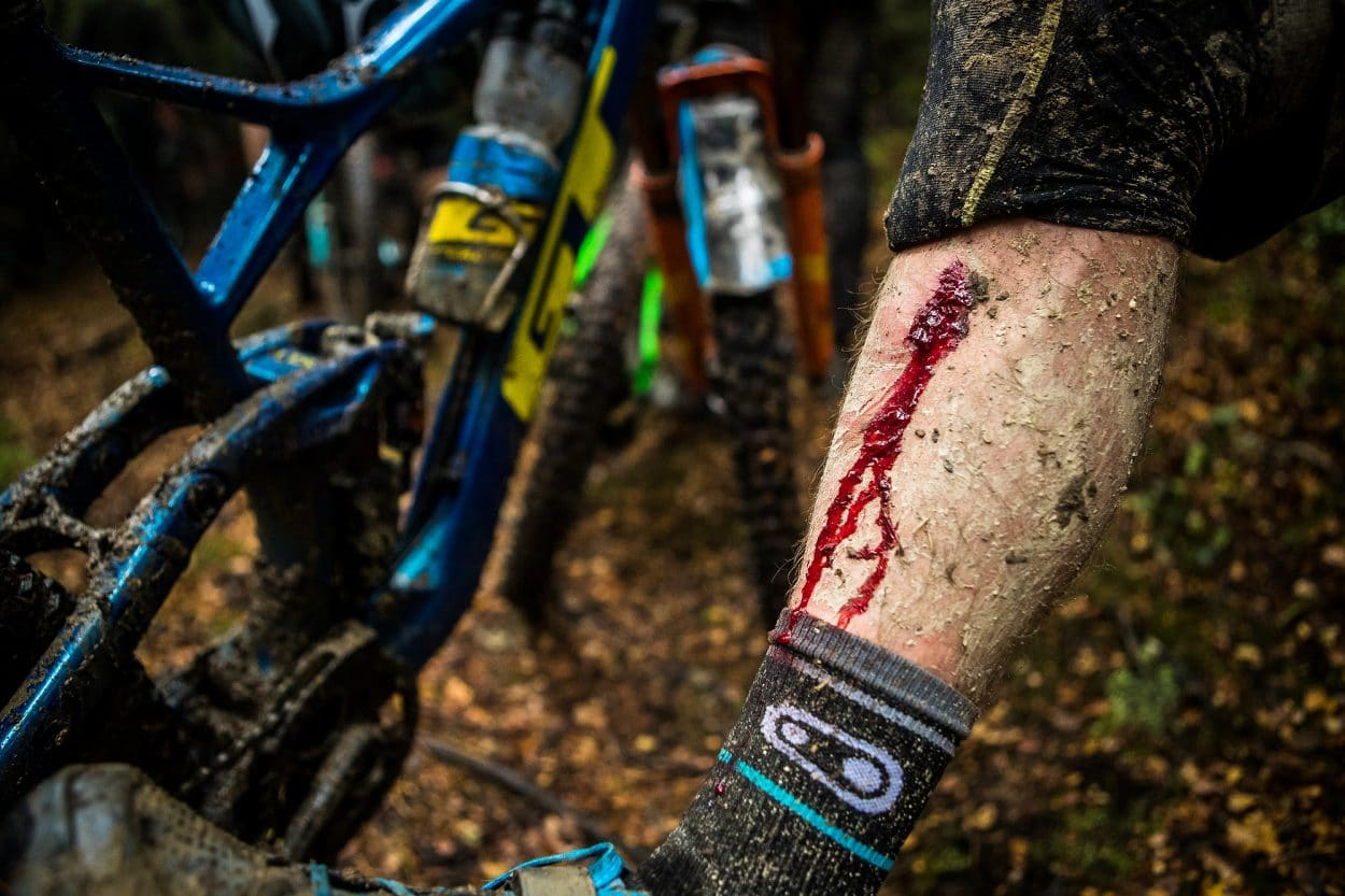 The Martin Maes Suspension | Mountain Bike Action Magazine